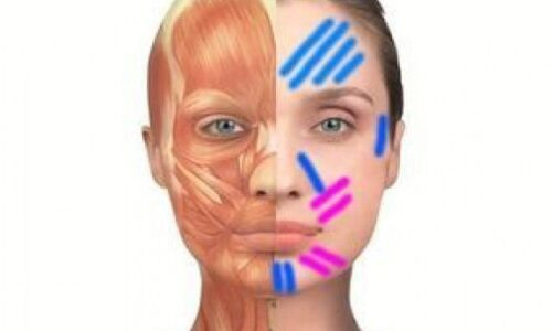 Vendaje neuromuscular aplicado a la estética facial